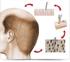 A FUE hajbeültetési eljárás