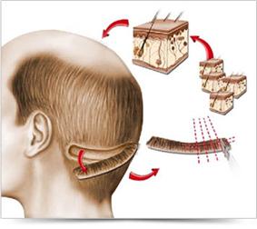 FUT hajbeültetési módszer