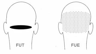 FUE és FUT hajbeültetési eljárások