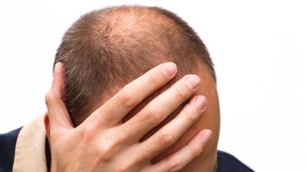 Hajhullás és a stressz